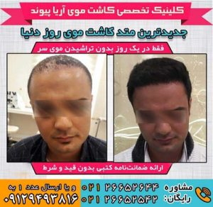 نمونه کاشت مو