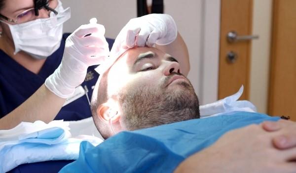 انتخاب یک کلینیک تخصصی معتبر برای کاشت مو