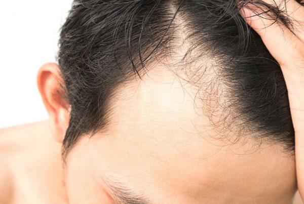 در مورد کاشت مو چه می دانید؟
