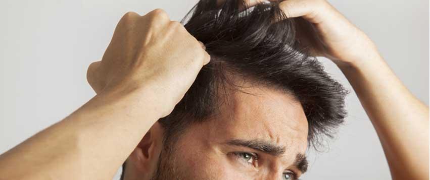 کاشت مو به روش micro fue