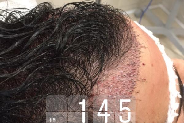 کاشت مو بدون تراشیدن سر