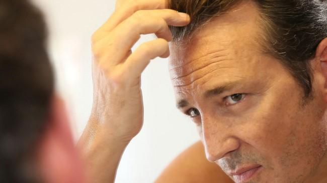 درصد موفقیت کاشت مو