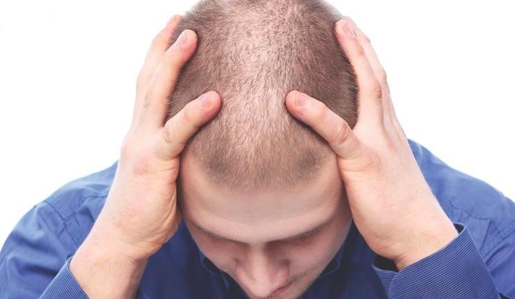پیش بینی ریزش مو و در نظر گرفتن بهترین سن برای کاشت مو